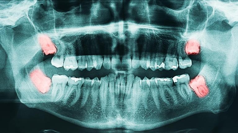 wisdom teeth edmonton