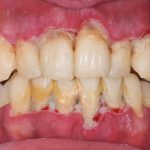 Tartar Buildup Leads to Periodontitis
