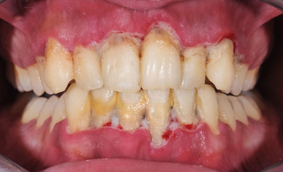 Tartar Buildup Leads to Periodontitis